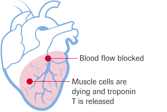 Heart attacks are caused by the interruption of the blood supply to parts of the heart