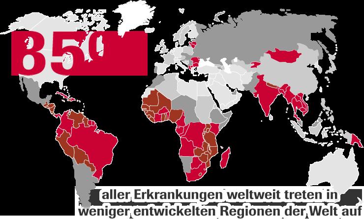 85% aller Erkrankungen weltweit treten in weniger entwickelten Regionen der Welt auf.