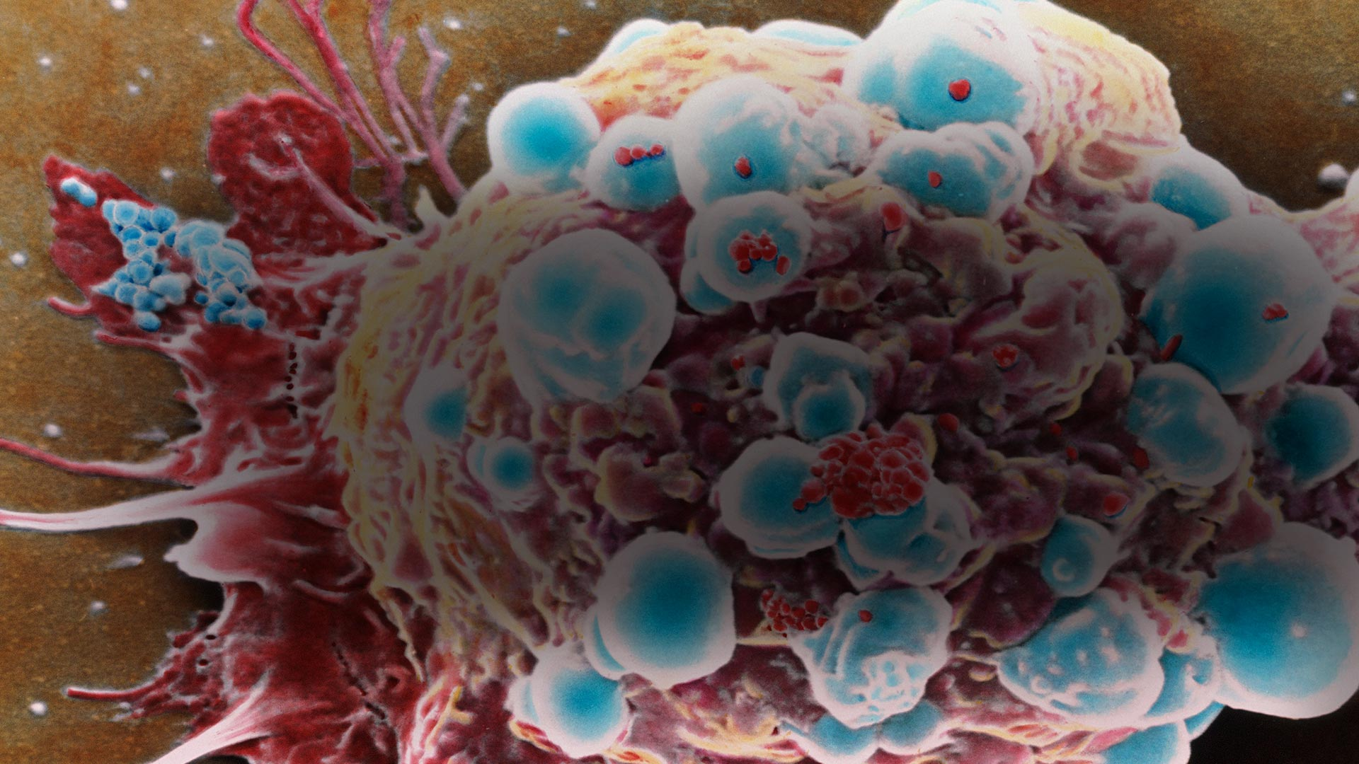 9 Things You May Not Know About Cancer