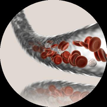 Limfom je među najčešćim oblicima malignih hematoloških bolesti