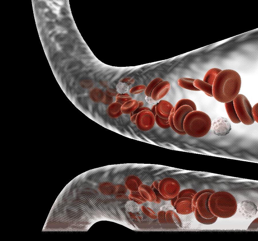 Koji je najčešći oblik raka krvi?
