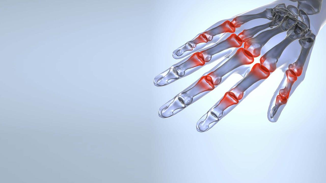 治疗关节炎的新方法