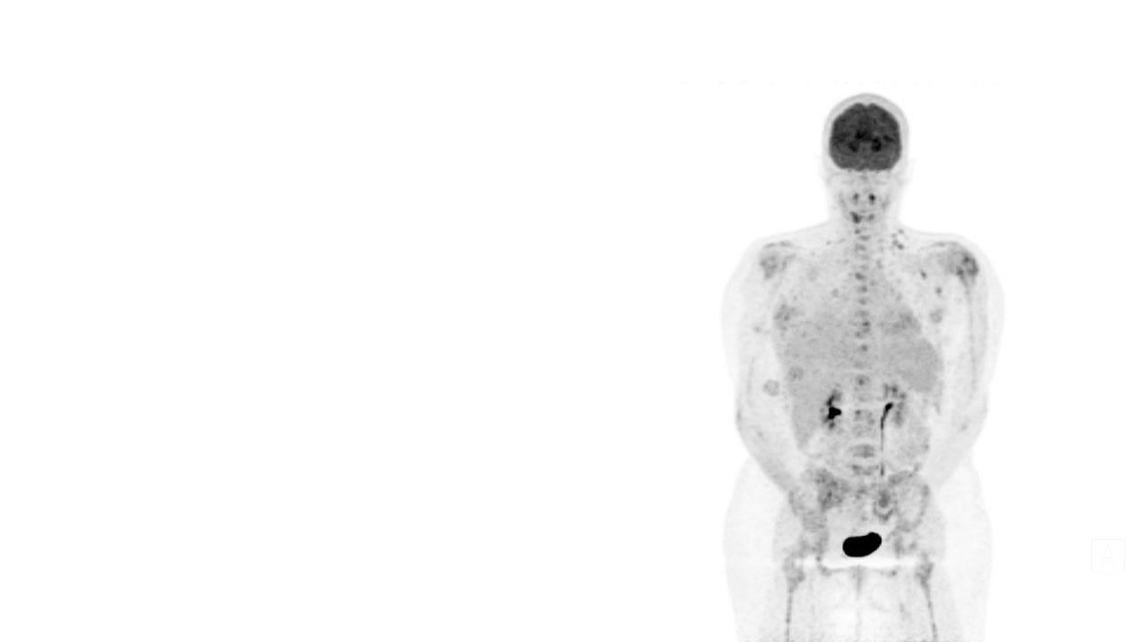 Breakthrough treatment of melanomas