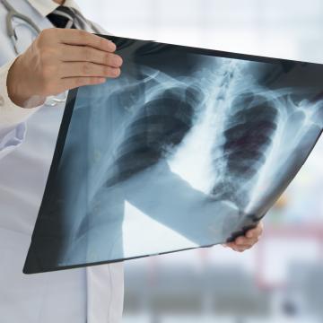 Rak pluća može se širiti po tijelu u obliku presadnica
