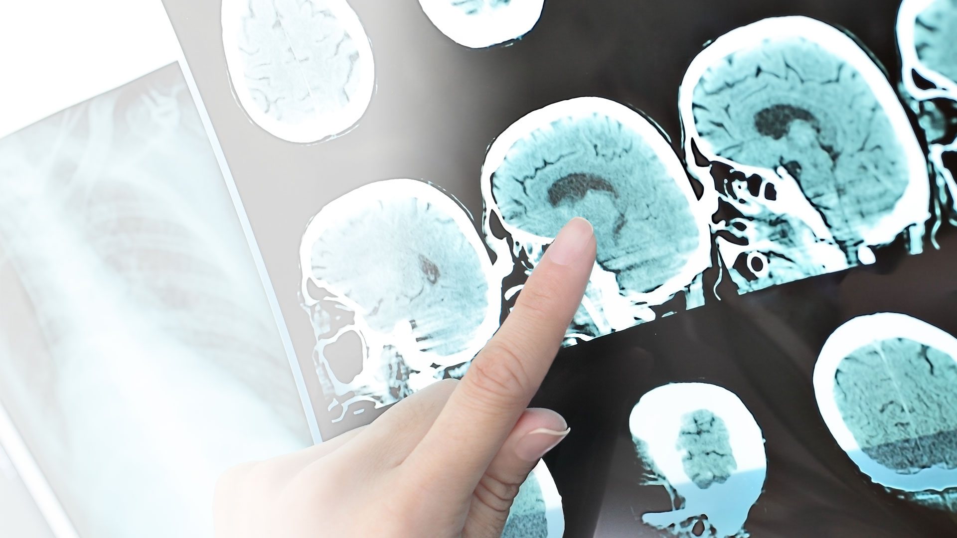 MRI first used to diagnose MS