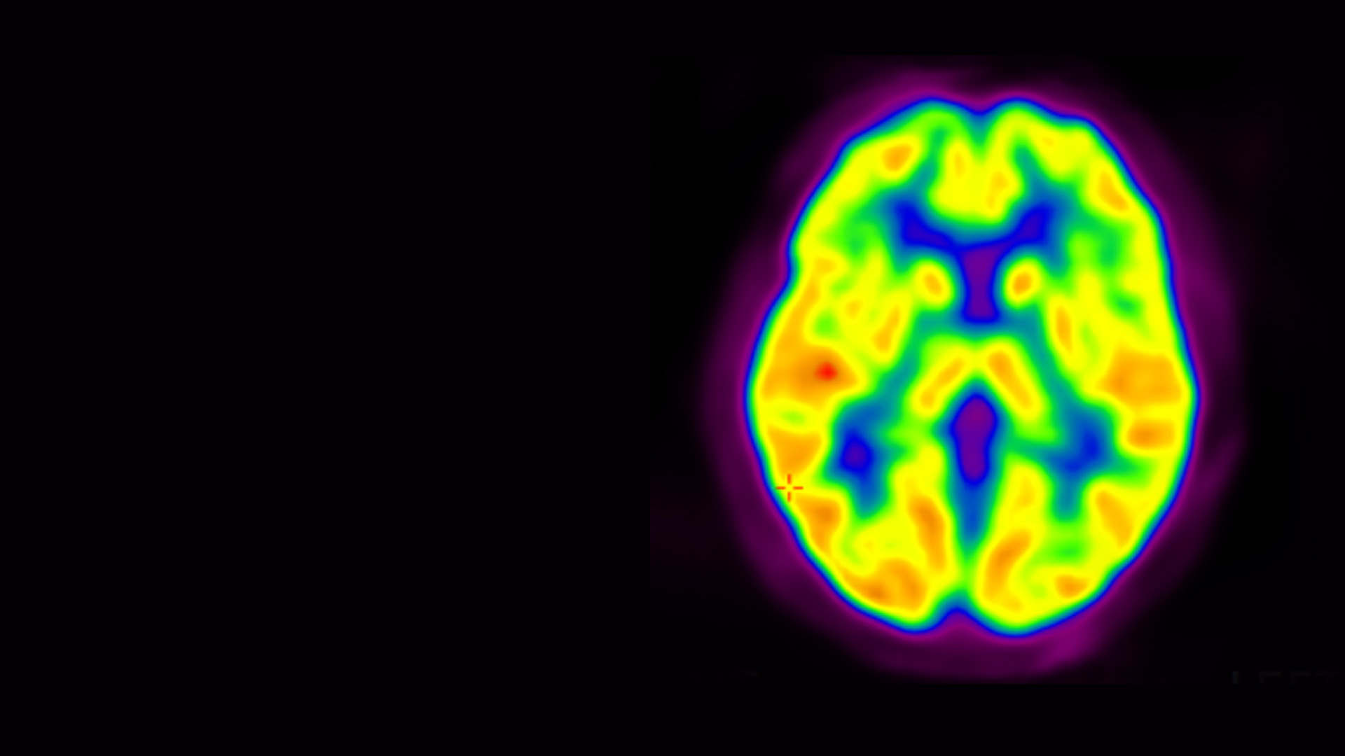Understanding genetics, imaging technologies, and data from clinical studies provide neurocientists new insights into how the brain works