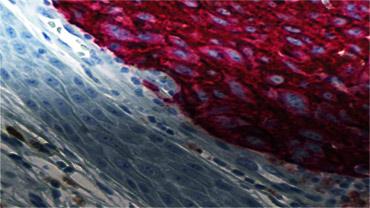 Metastatic melanoma<
