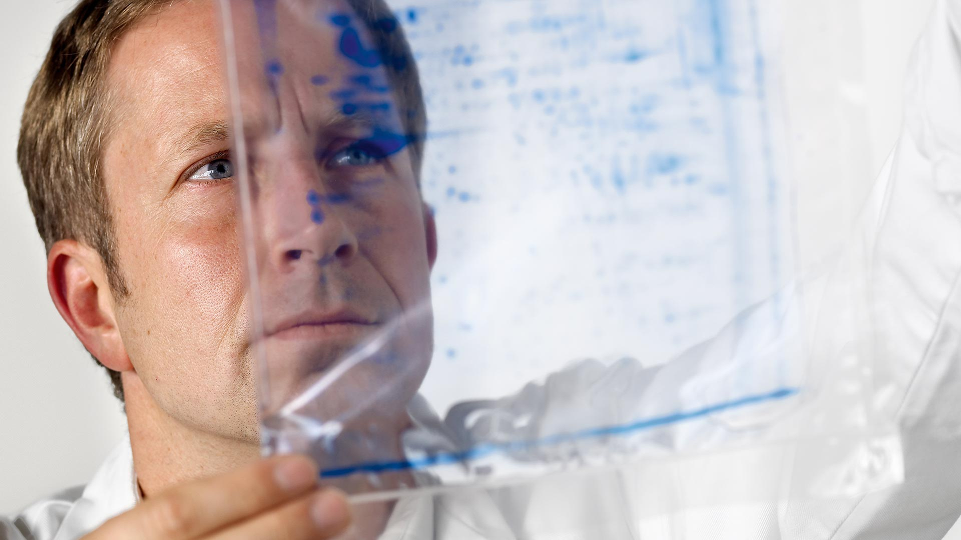 Male researcher looking at medical scan