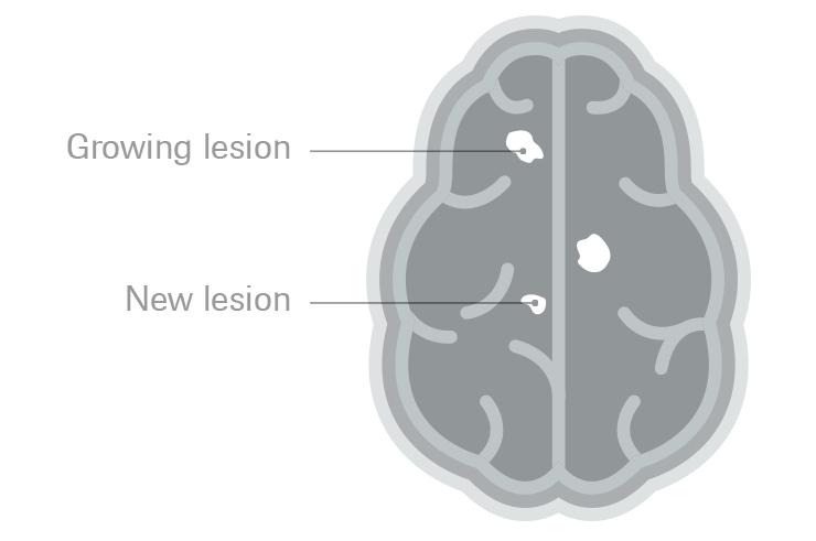 Активност на болеста според MRI
